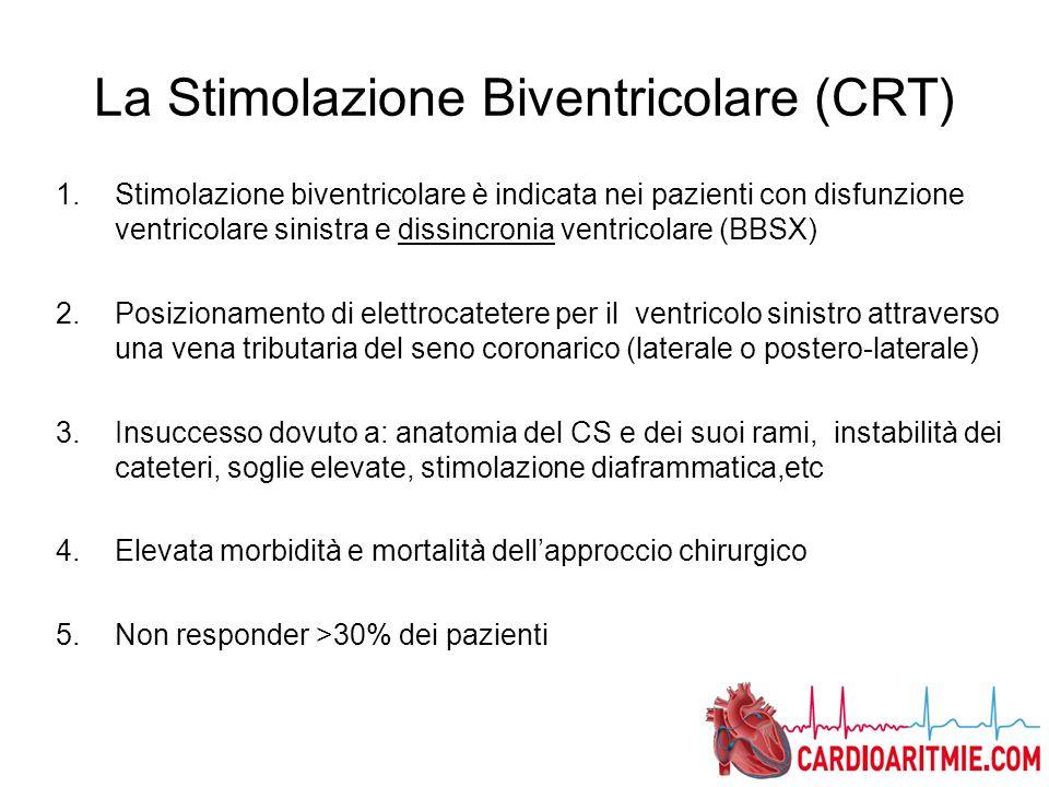 La Stimolazione Biventricolare (CRT) 1.Stimolazione biventricolare è indicata nei pazienti con disfunzione ventricolare sinistra e dissincronia ventri