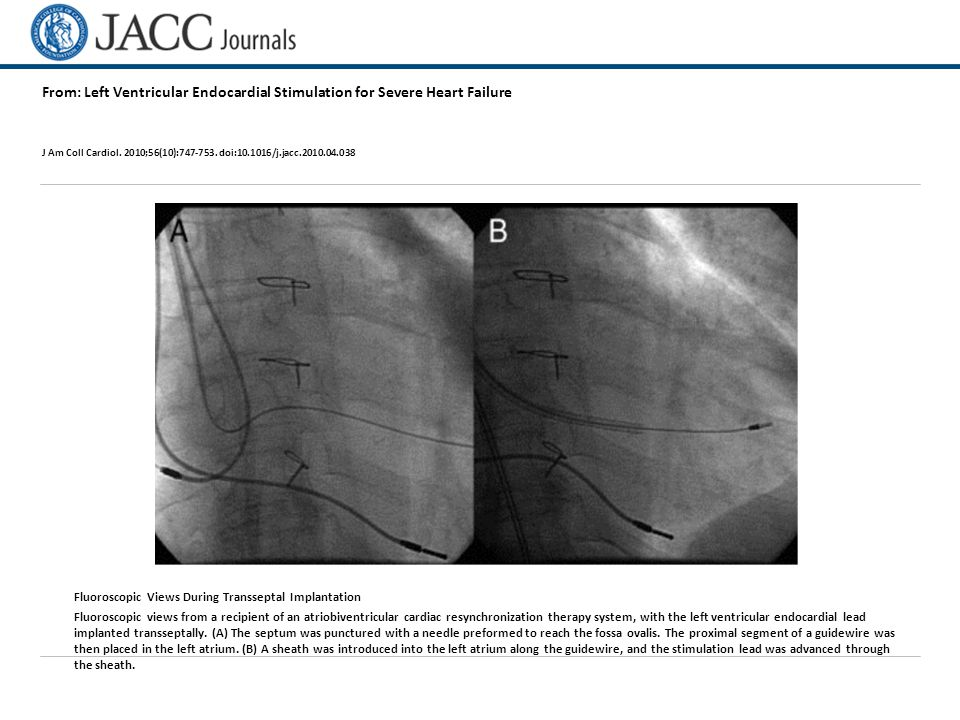 From: Left Ventricular Endocardial Stimulation for Severe Heart Failure J Am Coll Cardiol.