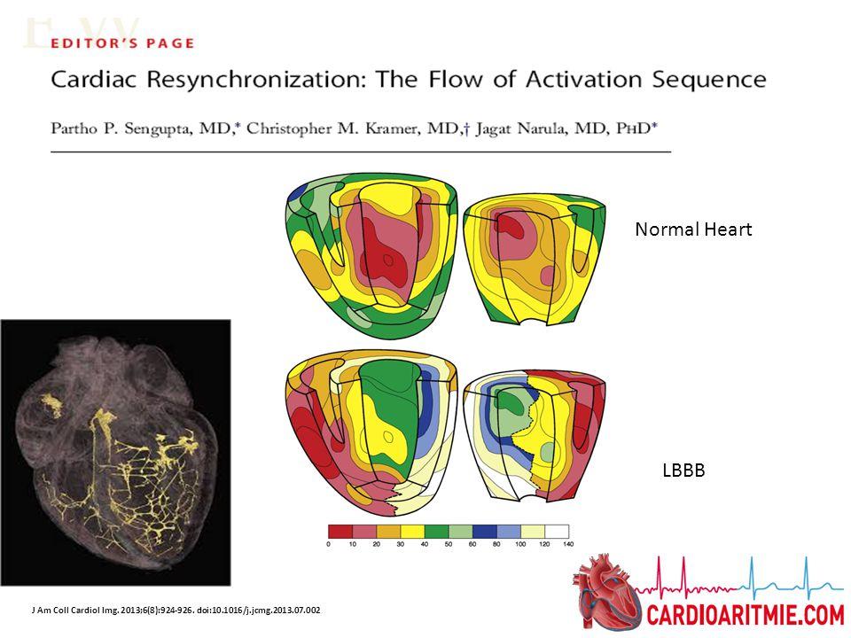 1.Vena cardiaca Laterale (marginale) 2. Vena cardiaca Postero- laterale 3.