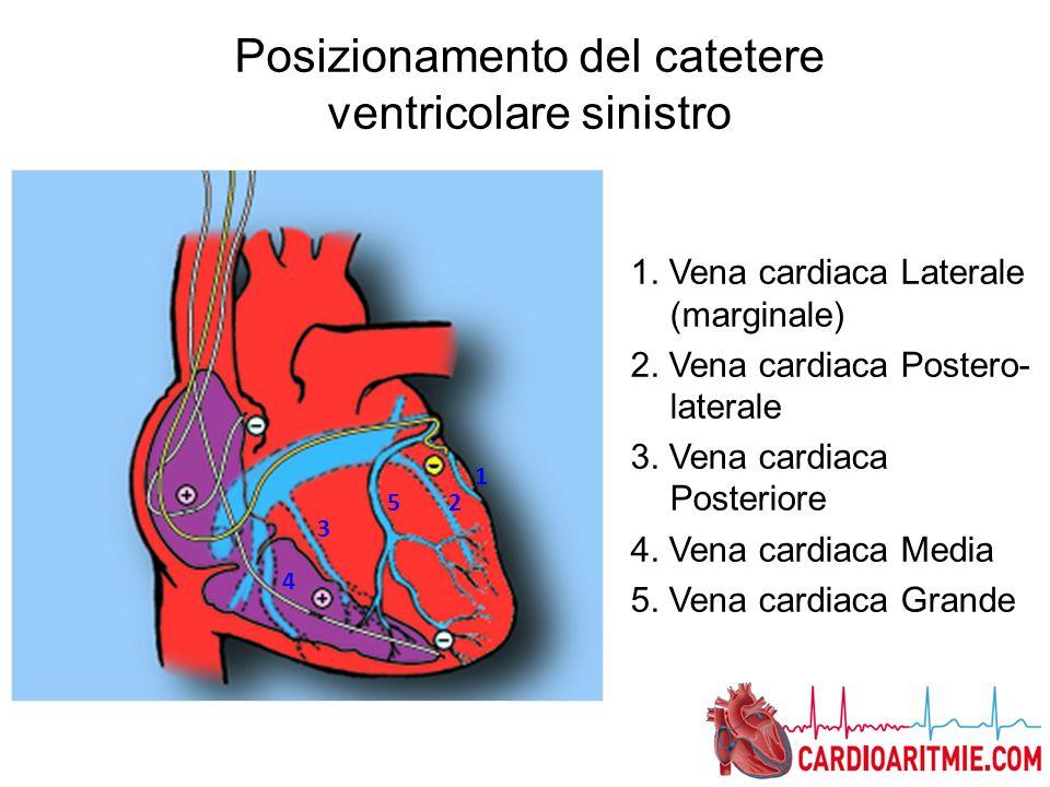 1. Vena cardiaca Laterale (marginale) 2. Vena cardiaca Postero- laterale 3. Vena cardiaca Posteriore 4. Vena cardiaca Media 5. Vena cardiaca Grande 1