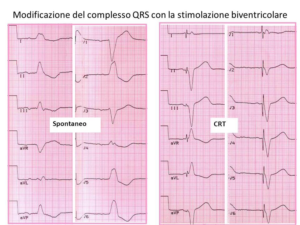 Effetto della CRT sulla funzione cardiaca Movimento anormale della parete del setto interventricolare 1 Ridotto dP/dt 3 Tempo di riempimento diastolico ridotto 1,2 Durata prolungata del rigurgito mitralico (MR) 1,2 1 Grines CL, Bashore TM, Boudoulas H, et al.