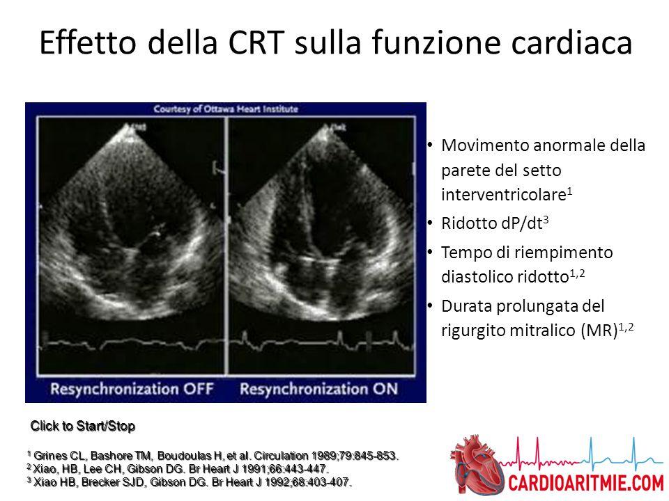 Effetto della CRT sulla funzione cardiaca Movimento anormale della parete del setto interventricolare 1 Ridotto dP/dt 3 Tempo di riempimento diastolic