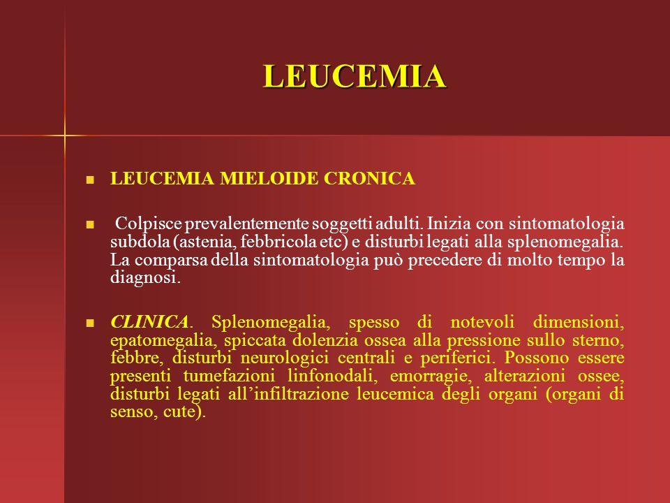 LEUCEMIA LEUCEMIA MIELOIDE CRONICA Colpisce prevalentemente soggetti adulti. Inizia con sintomatologia subdola (astenia, febbricola etc) e disturbi le
