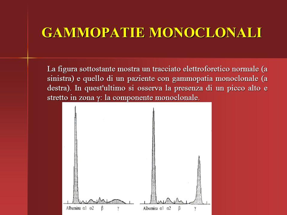 La figura sottostante mostra un tracciato elettroforetico normale (a sinistra) e quello di un paziente con gammopatia monoclonale (a destra). In quest