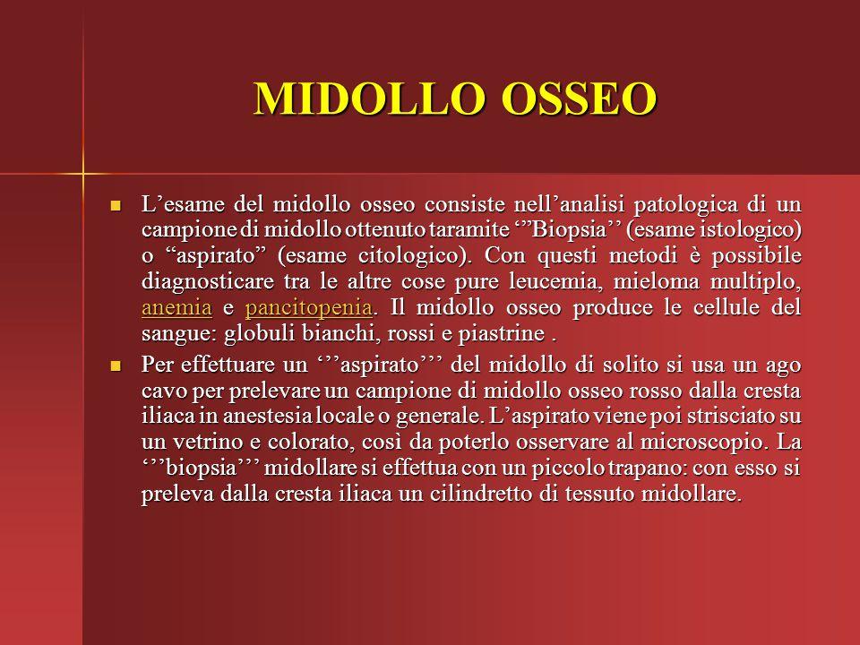 """MIDOLLO OSSEO L'esame del midollo osseo consiste nell'analisi patologica di un campione di midollo ottenuto taramite '""""Biopsia'' (esame istologico) o"""