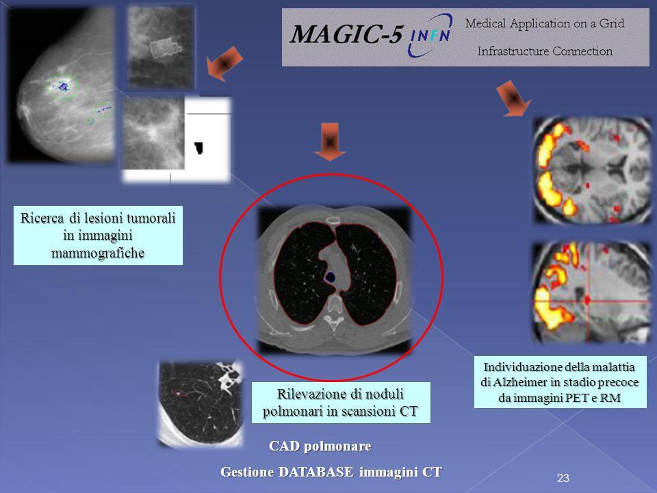 23 Individuazione della malattia di Alzheimer in stadio precoce da immagini PET e RM Ricerca di lesioni tumorali in immagini mammografiche Rilevazione di noduli polmonari in scansioni CT CAD polmonare Gestione DATABASE immagini CT