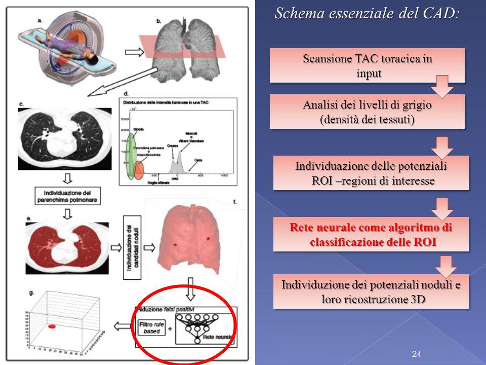Schema essenziale del CAD: Scansione TAC toracica in input input Scansione TAC toracica in input input Analisi dei livelli di grigio (densità dei tessuti) Individuazione delle potenziali ROI –regioni di interesse Rete neurale come algoritmo di classificazione delle ROI Individuzione dei potenziali noduli e loro ricostruzione 3D 24