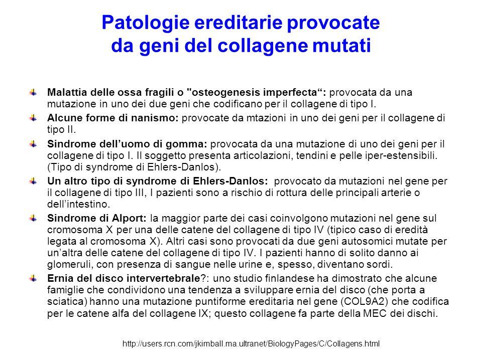 Patologie ereditarie provocate da geni del collagene mutati Malattia delle ossa fragili o