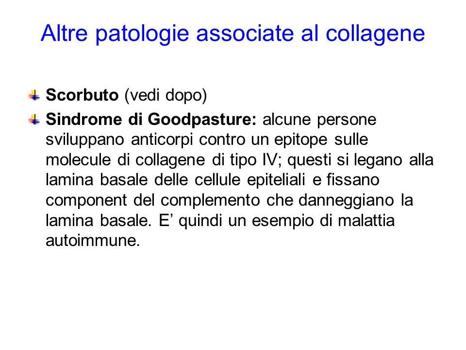 Altre patologie associate al collagene Scorbuto (vedi dopo) Sindrome di Goodpasture: alcune persone sviluppano anticorpi contro un epitope sulle molec
