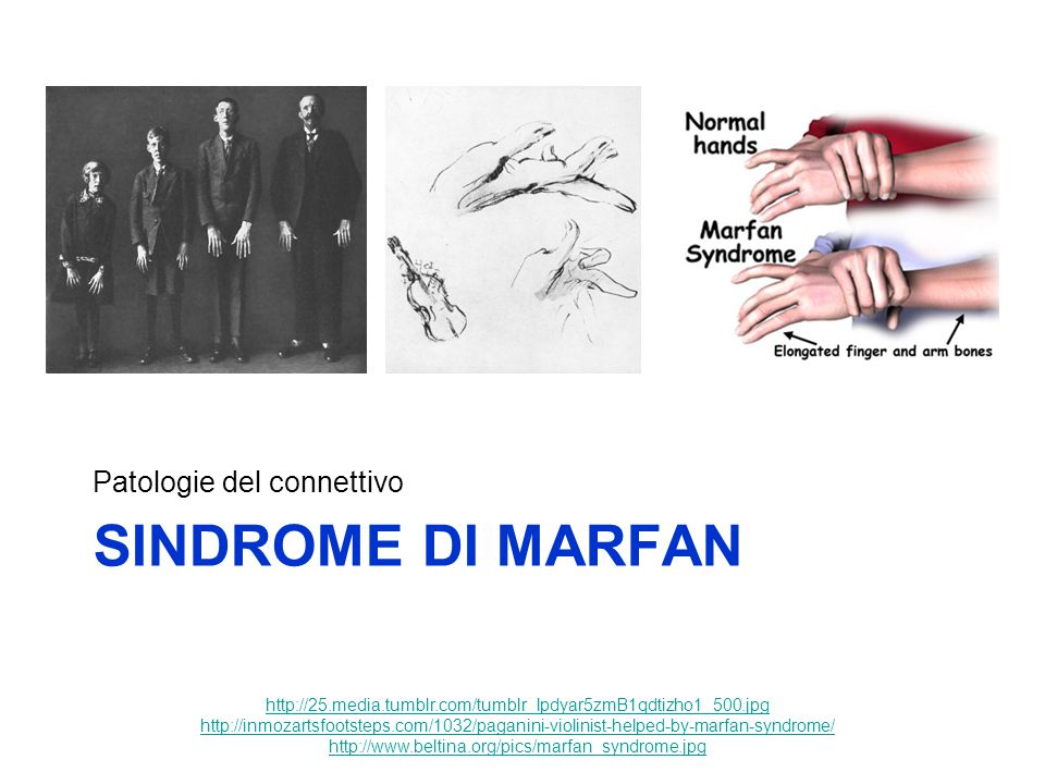 SINDROME DI MARFAN Patologie del connettivo http://25.media.tumblr.com/tumblr_lpdyar5zmB1qdtizho1_500.jpg http://inmozartsfootsteps.com/1032/paganini-