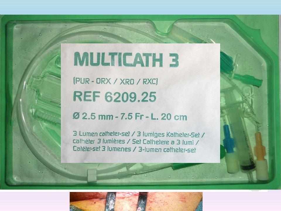 Si prepara la mousse sclerosante con 1 cc.di aetossisclerol al 3% e 4 cc.