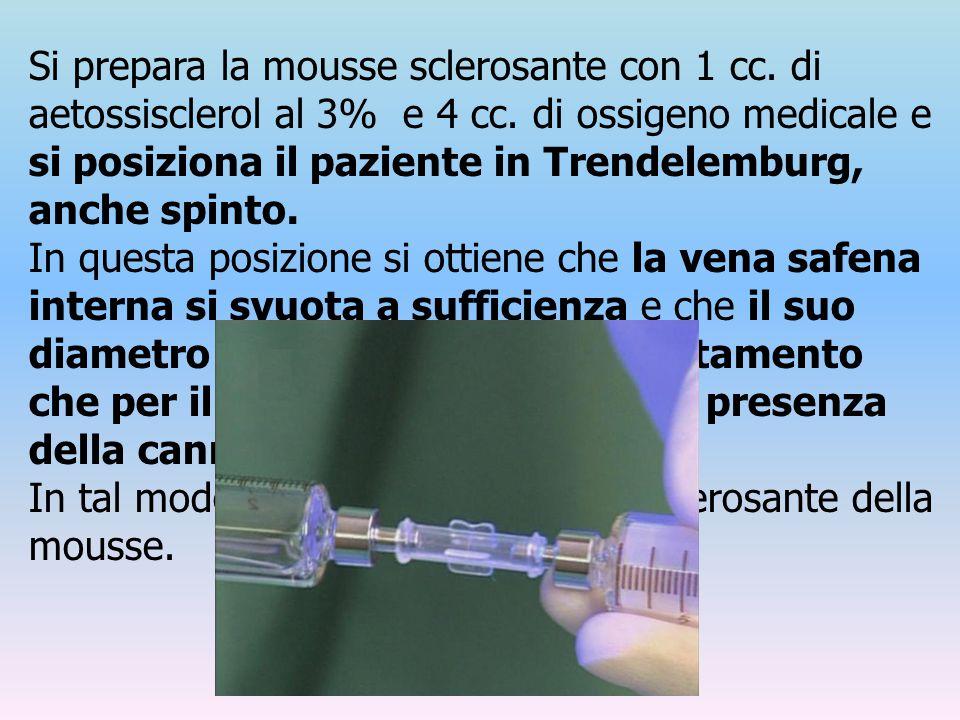 Si prepara la mousse sclerosante con 1 cc. di aetossisclerol al 3% e 4 cc. di ossigeno medicale e si posiziona il paziente in Trendelemburg, anche spi