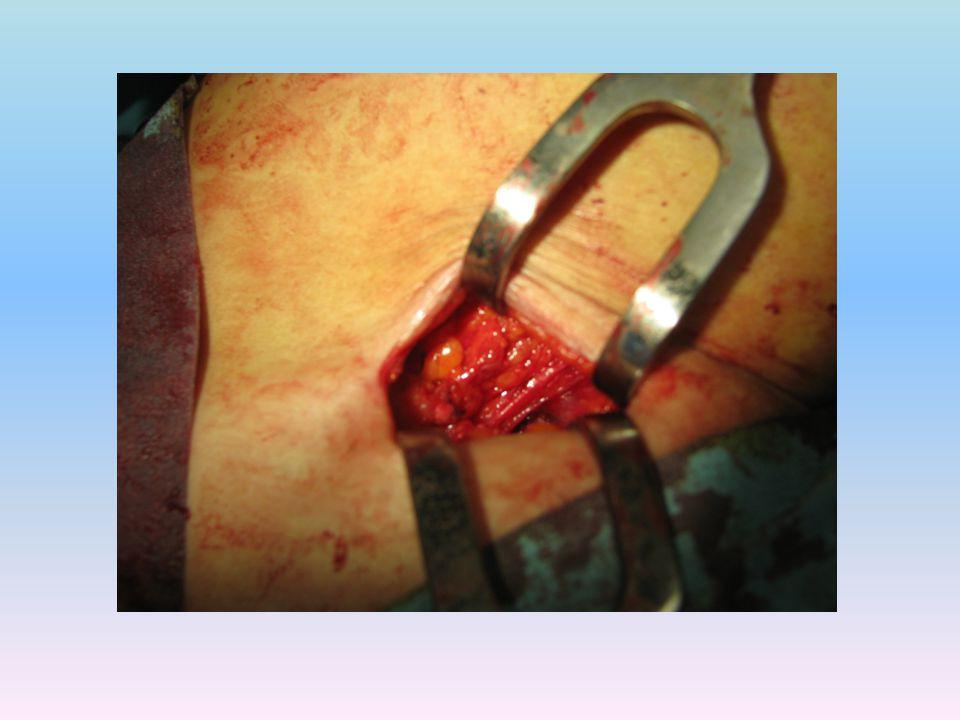 Il paziente, appena finito il trattamento combinato, si può subito alzare dal lettino operatorio ed è libero, col massimo comfort, di effettuare qualunque movimento, a differenza di quanto accade quando, invece, è sottoposto ad anestesia spinale o bi-block.