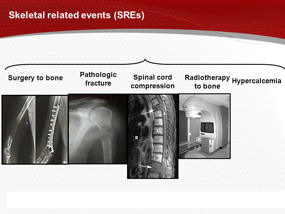 Page  3 Surgery to bone Pathologic fracture Spinal cord compression Radiotherapy to bone Skeletal related events (SREs) Hypercalcemia