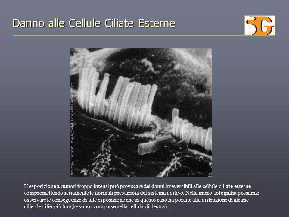 Danno alle Cellule Ciliate Esterne L'esposizione a rumori troppo intensi può provocare dei danni irreversibili alle cellule ciliate esterne compromett