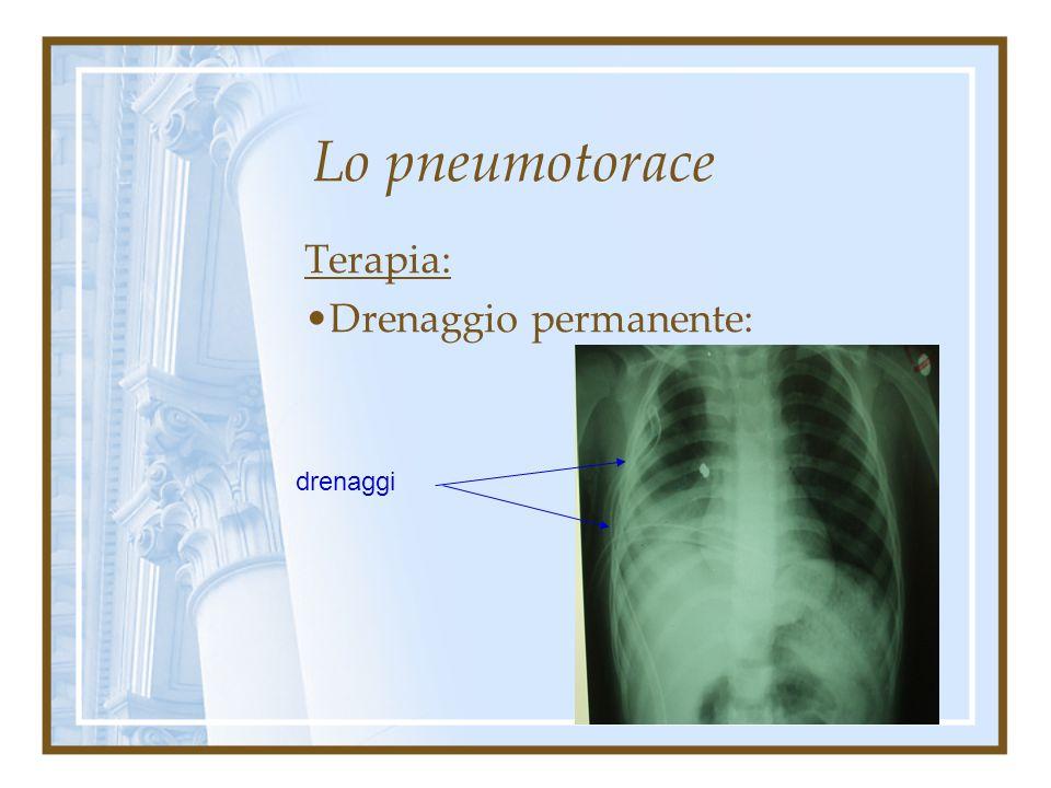Lo pneumotorace Terapia: adeguata all'importanza del quadro clinico, per solito a step progressivi. Drenaggio permanente: nelle forme importanti ed a