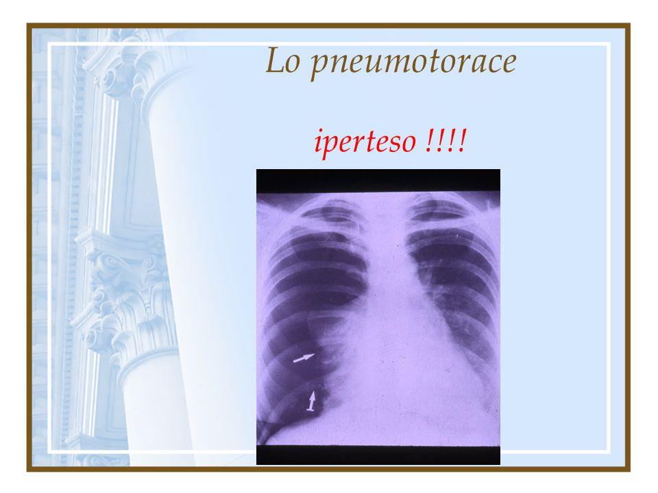Lo pneumotorace iperteso !!!! Situazione patologica con possibile carattere di emergenza, caratterizzata da situazione fisiopatologica contraddistinta