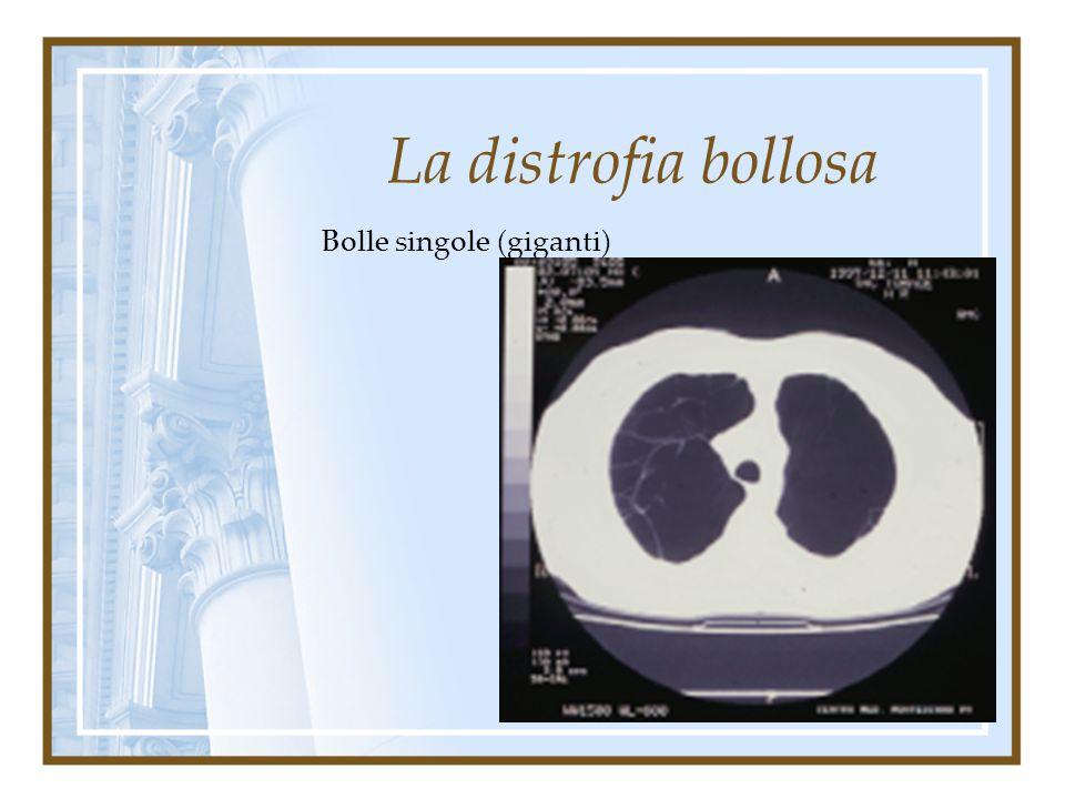 La distrofia bollosa Bolle multiple diffuse
