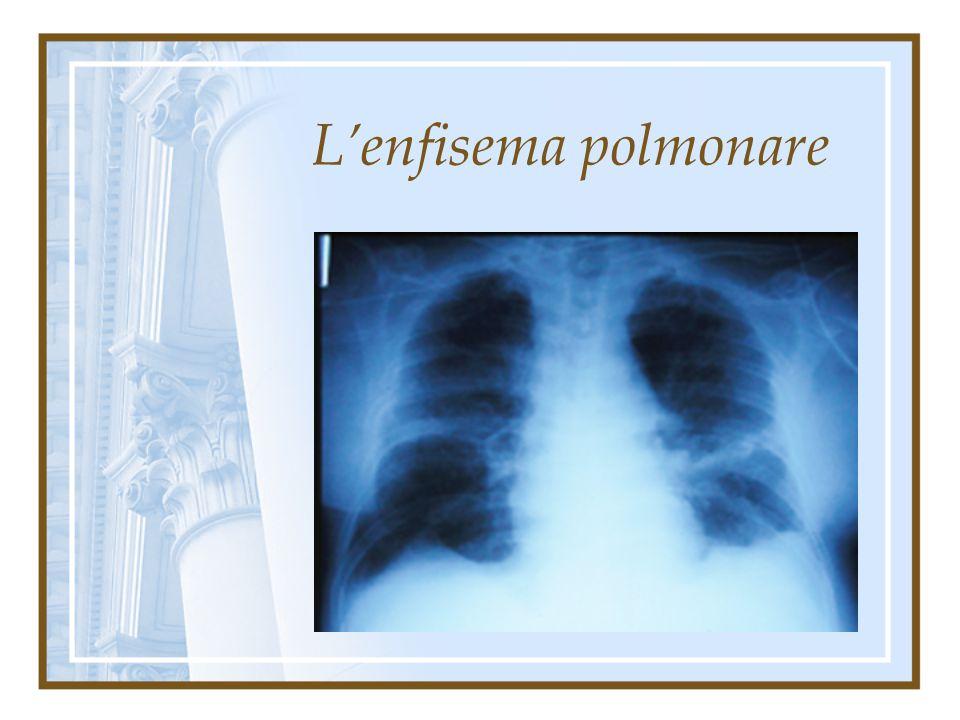 L'enfisema polmonare Enfisema centrolobulare dilatazione che interessa prevalentemente od esclusivamente i bronchioli respiratori alla sommità della p