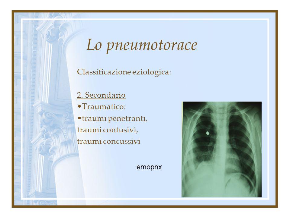 Lo pneumotorace Classificazione eziologica: 2. Secondario ad altra situazione patologica. Malattia bollosa del polmone Enfisema Focolai broncopolmonit