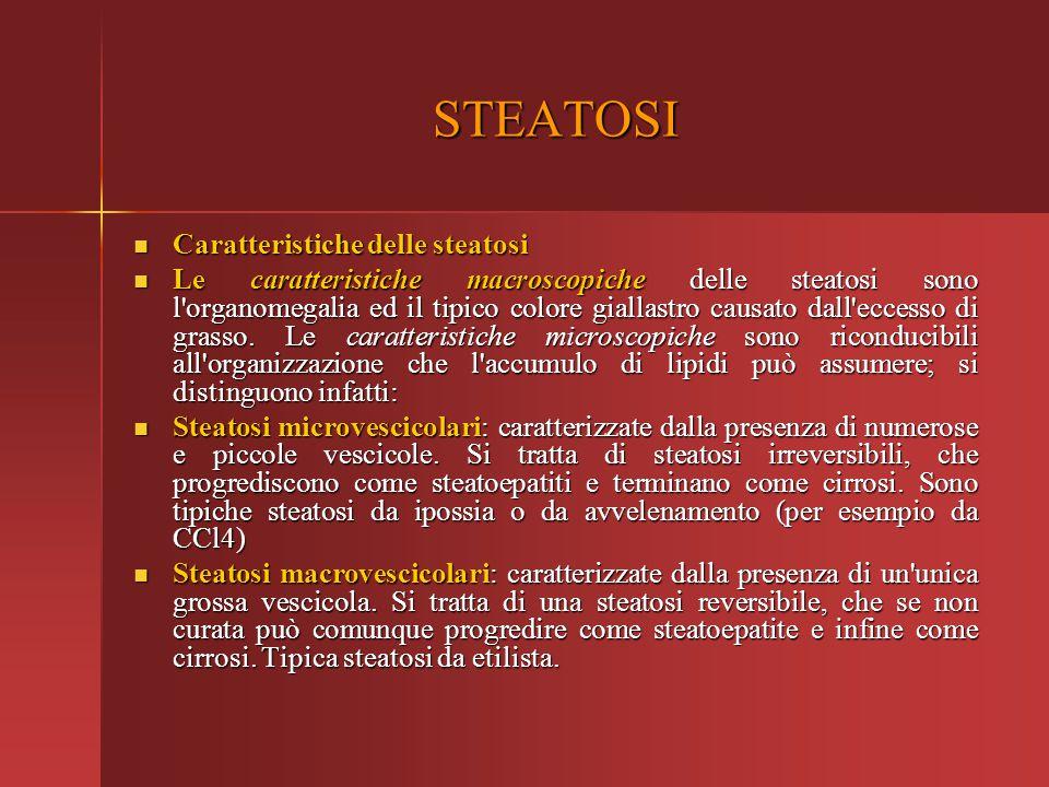 Caratteristiche delle steatosi Caratteristiche delle steatosi Le caratteristiche macroscopiche delle steatosi sono l'organomegalia ed il tipico colore