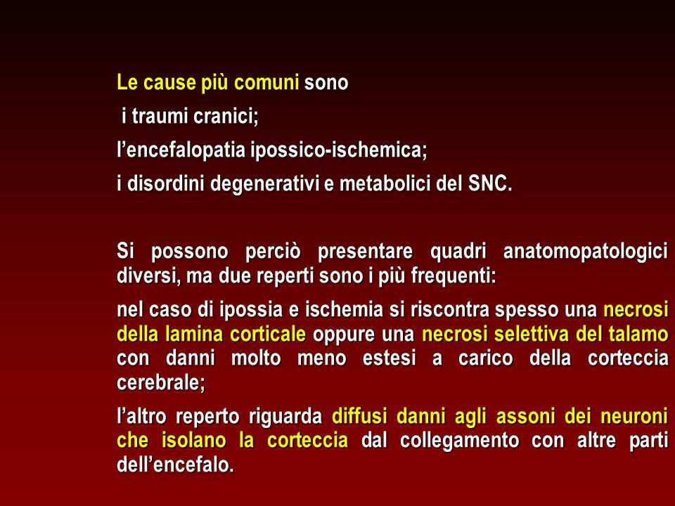 Le cause più comuni sono i traumi cranici; i traumi cranici; l'encefalopatia ipossico-ischemica; i disordini degenerativi e metabolici del SNC. Si pos