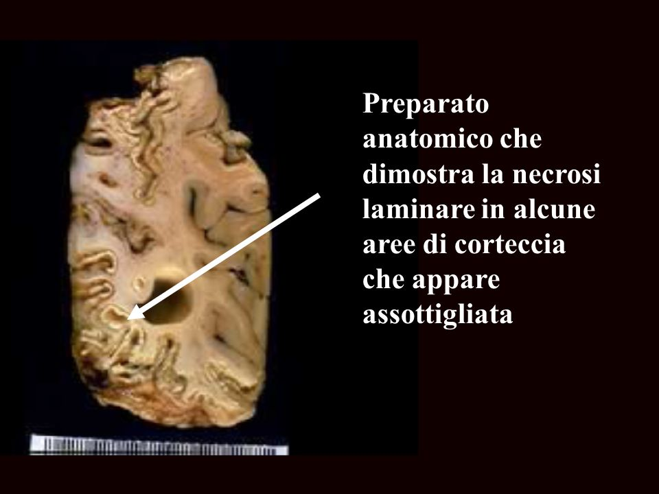 Preparato anatomico che dimostra la necrosi laminare in alcune aree di corteccia che appare assottigliata
