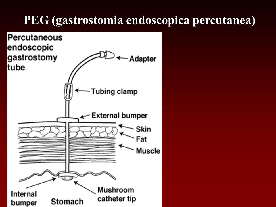 PEG (gastrostomia endoscopica percutanea)