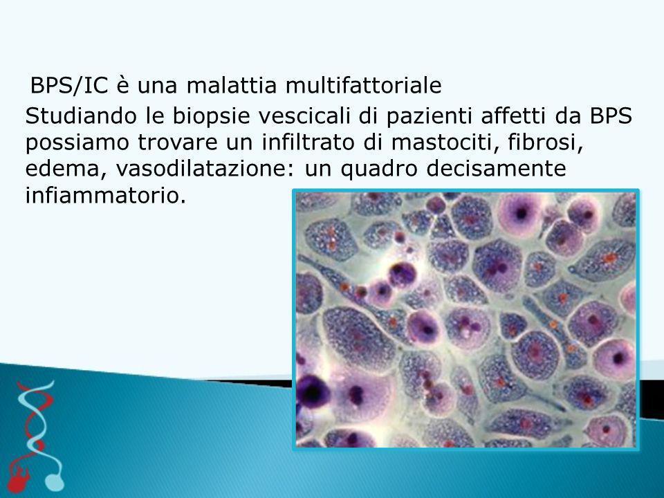 BPS/IC è una malattia multifattoriale Studiando le biopsie vescicali di pazienti affetti da BPS possiamo trovare un infiltrato di mastociti, fibrosi,