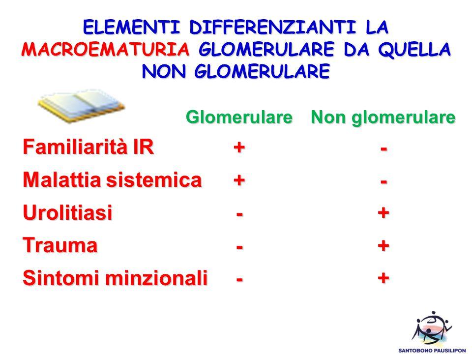 ELEMENTI DIFFERENZIANTI LA MACROEMATURIA GLOMERULARE DA QUELLA NON GLOMERULARE Familiarità IR Malattia sistemica UrolitiasiTrauma Sintomi minzionali Glomerulare++--- Non glomerulare --+++