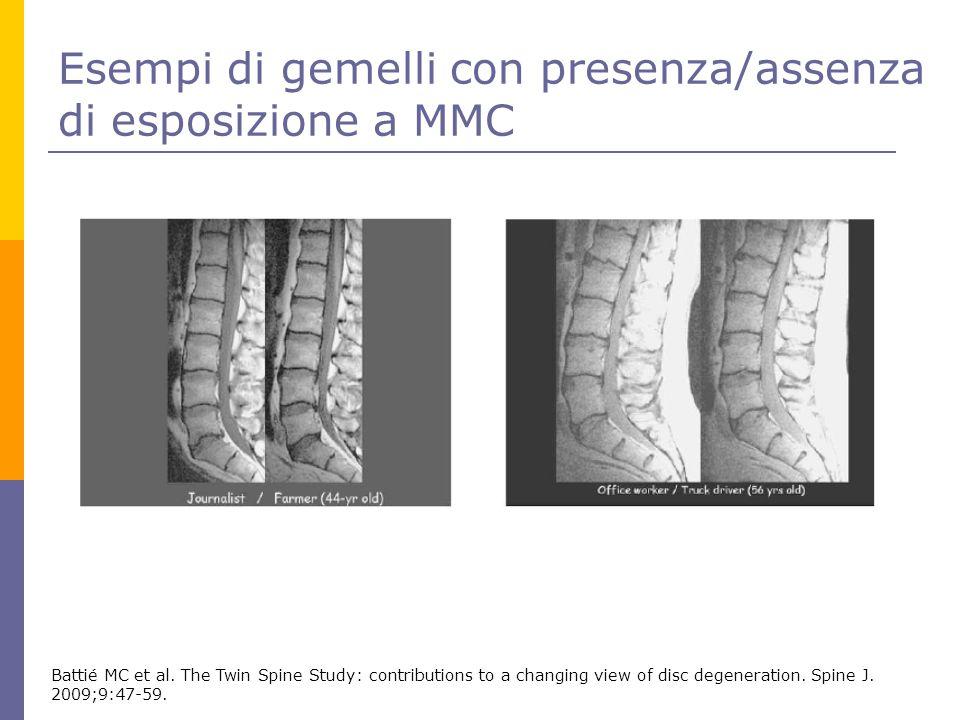 Esempi di gemelli con presenza/assenza di esposizione a MMC Battié MC et al. The Twin Spine Study: contributions to a changing view of disc degenerati