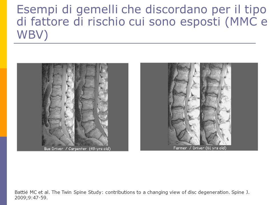 Esempi di gemelli che discordano per il tipo di fattore di rischio cui sono esposti (MMC e WBV) Battié MC et al. The Twin Spine Study: contributions t