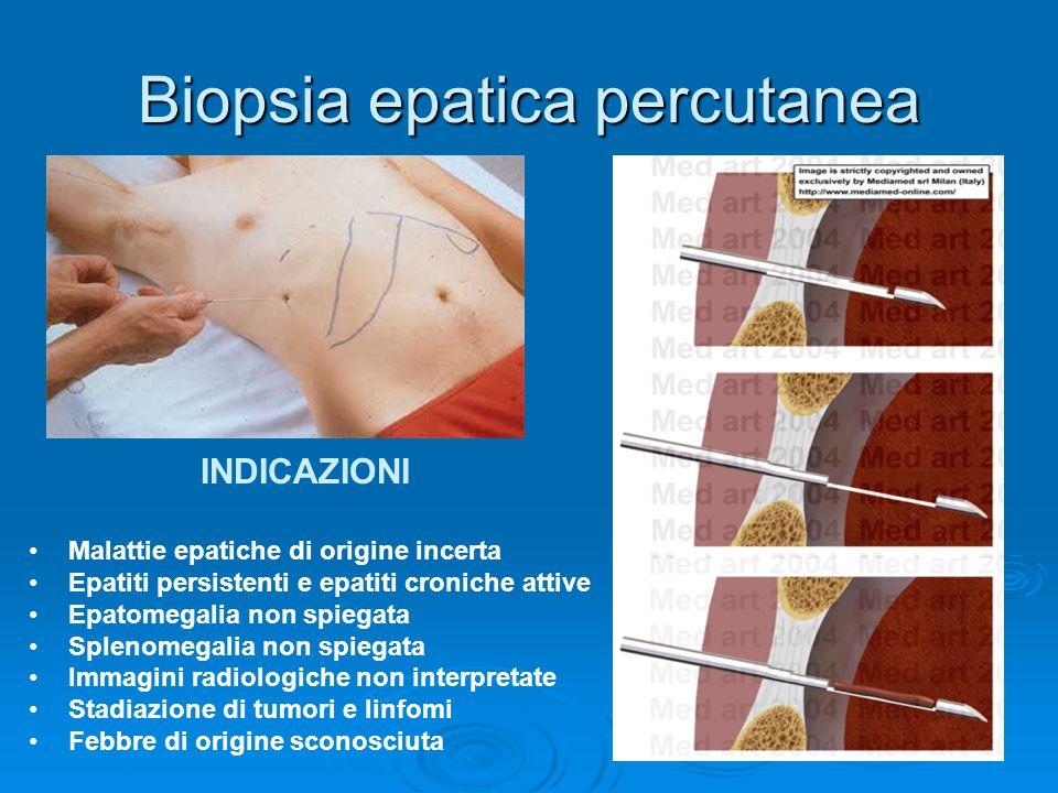 Biopsia epatica percutanea INDICAZIONI Malattie epatiche di origine incerta Epatiti persistenti e epatiti croniche attive Epatomegalia non spiegata Sp
