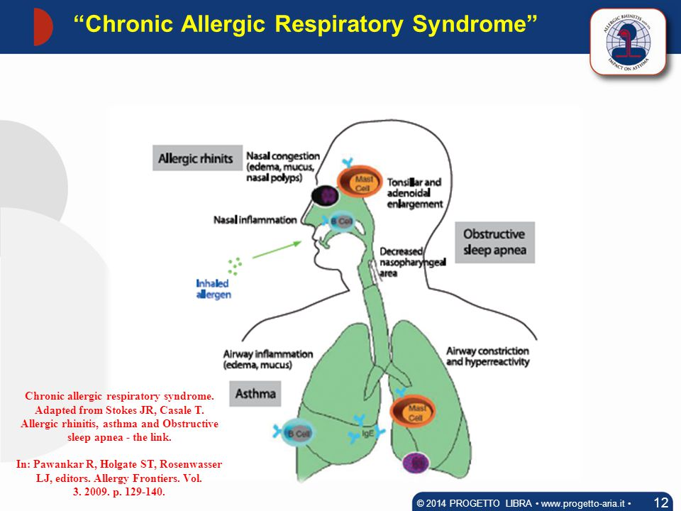 """""""Chronic Allergic Respiratory Syndrome"""" 12 © 2014 PROGETTO LIBRA www.progetto-aria.it Chronic allergic respiratory syndrome. Adapted from Stokes JR, C"""