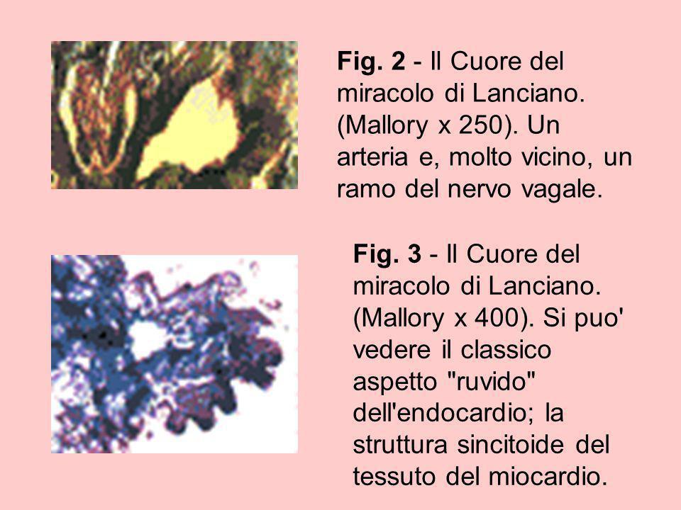 Fig. 2 - Il Cuore del miracolo di Lanciano. (Mallory x 250). Un arteria e, molto vicino, un ramo del nervo vagale. Fig. 3 - Il Cuore del miracolo di L