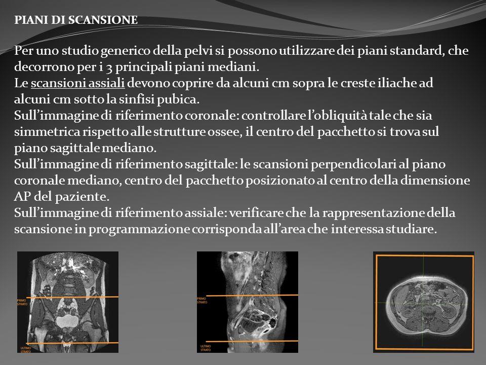 PIANI DI SCANSIONE Per uno studio generico della pelvi si possono utilizzare dei piani standard, che decorrono per i 3 principali piani mediani. Le sc
