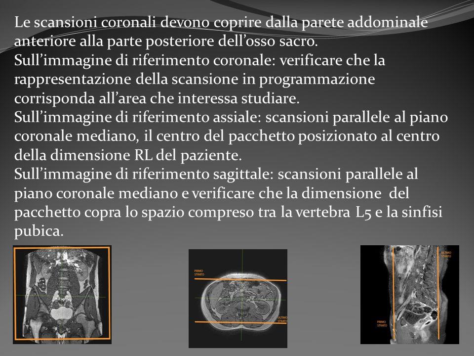 Le scansioni coronali devono coprire dalla parete addominale anteriore alla parte posteriore dell'osso sacro. Sull'immagine di riferimento coronale: v