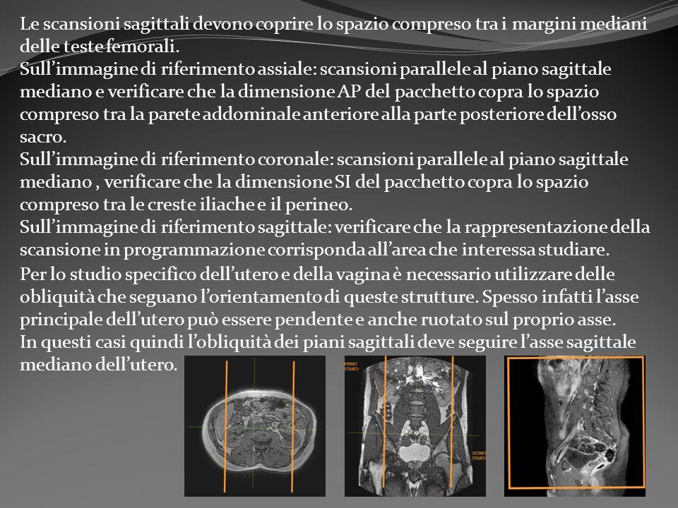 Le scansioni sagittali devono coprire lo spazio compreso tra i margini mediani delle teste femorali. Sull'immagine di riferimento assiale: scansioni p