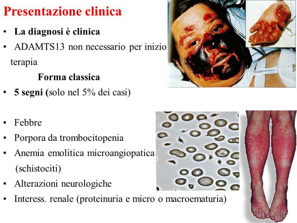 Presentazione clinica La diagnosi è clinica ADAMTS13 non necessario per inizio terapia Forma classica 5 segni (solo nel 5% dei casi) Febbre Porpora da