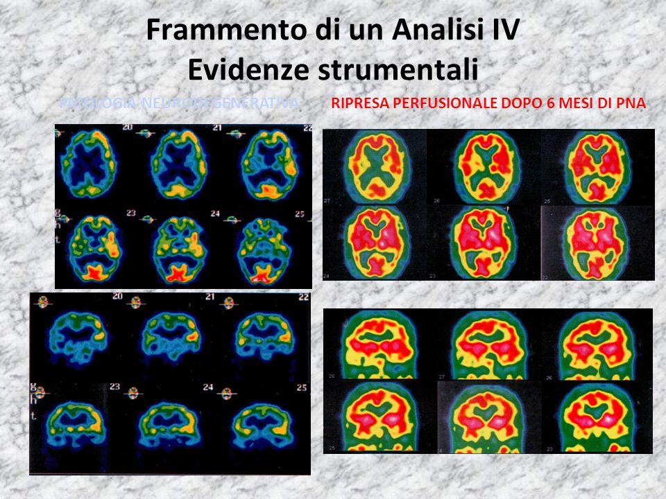 Frammento di un Analisi IV Evidenze strumentali PATOLOGIA NEURODEGENERATIVARIPRESA PERFUSIONALE DOPO 6 MESI DI PNA