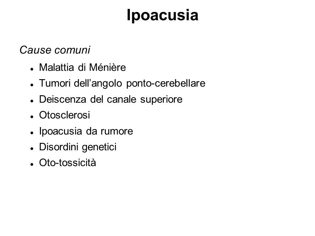 Ipoacusia Cause comuni Malattia di Ménière Tumori dell'angolo ponto-cerebellare Deiscenza del canale superiore Otosclerosi Ipoacusia da rumore Disordi