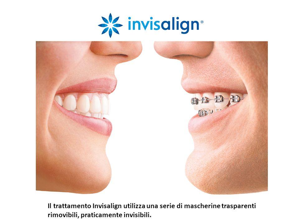 Il trattamento Invisalign utilizza una serie di mascherine trasparenti rimovibili, praticamente invisibili.