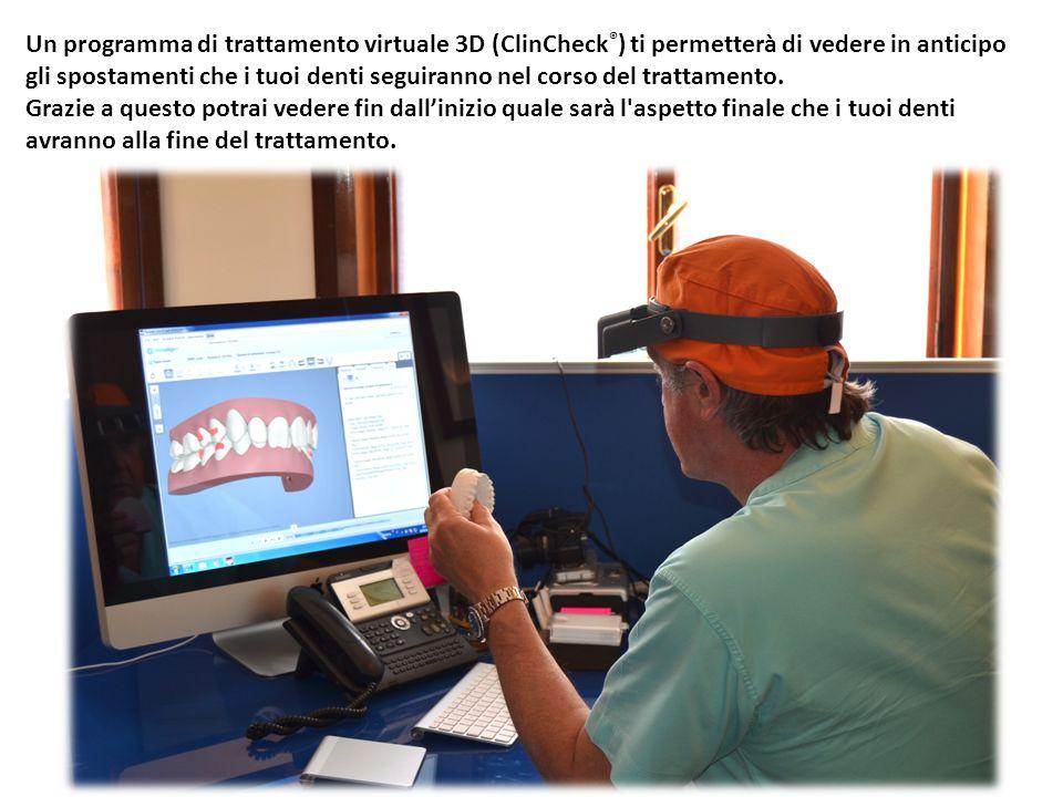 Un programma di trattamento virtuale 3D (ClinCheck ® ) ti permetterà di vedere in anticipo gli spostamenti che i tuoi denti seguiranno nel corso del t