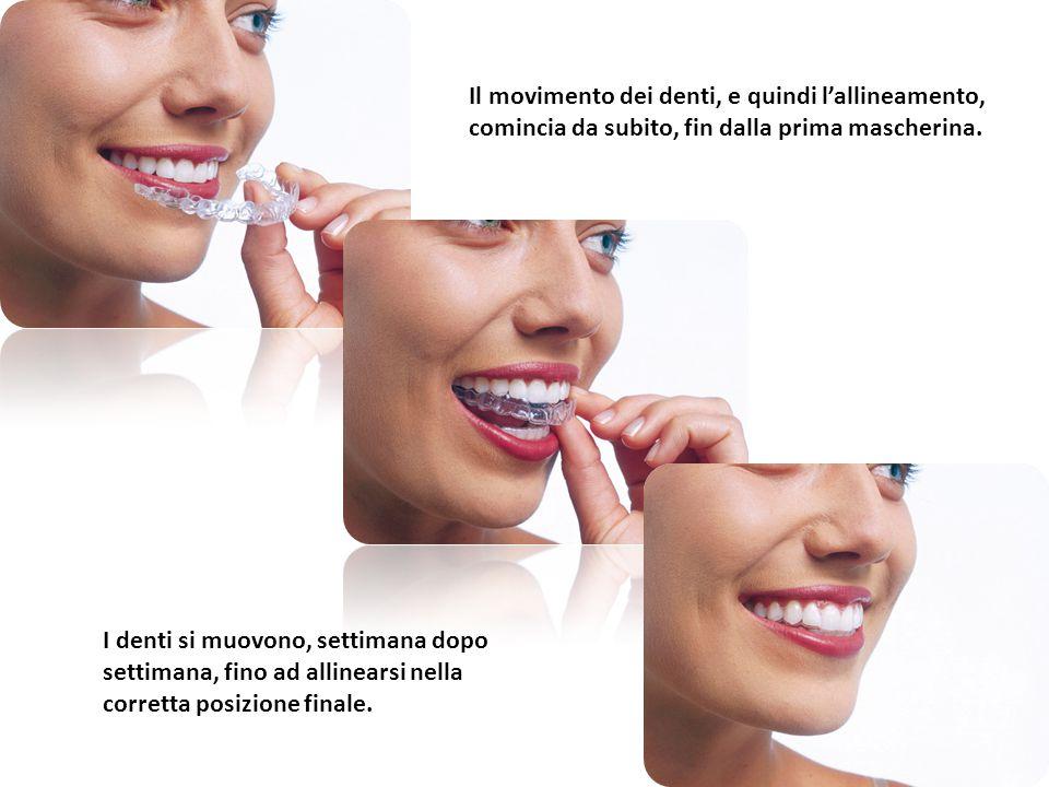 Il movimento dei denti, e quindi l'allineamento, comincia da subito, fin dalla prima mascherina. I denti si muovono, settimana dopo settimana, fino ad