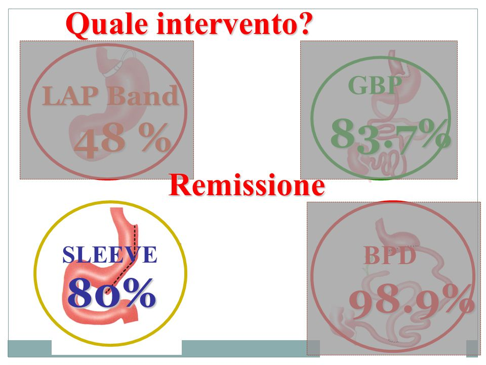 Quale intervento? GBP 83.7% BPD 98.9% SLEEVE 80% LAP Band 48 % Remissione