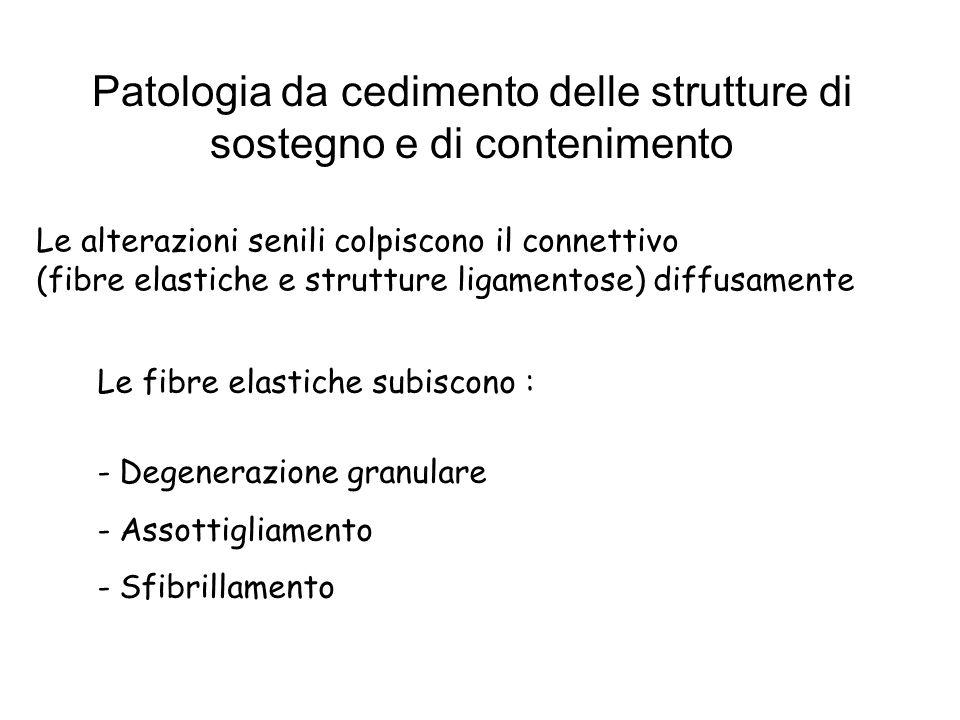 Patologia da cedimento delle strutture di sostegno e di contenimento Le alterazioni senili colpiscono il connettivo (fibre elastiche e strutture ligam