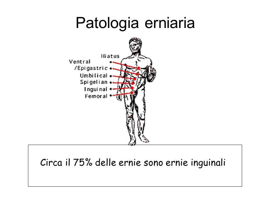 Circa il 75% delle ernie sono ernie inguinali Patologia erniaria