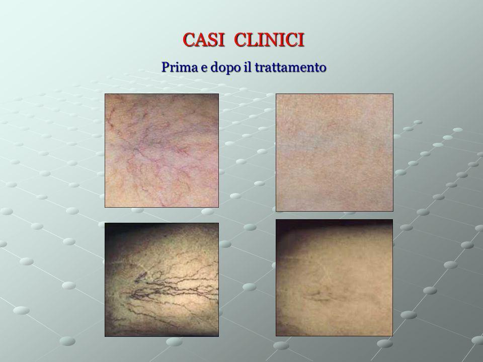 CASI CLINICI Prima e dopo il trattamento