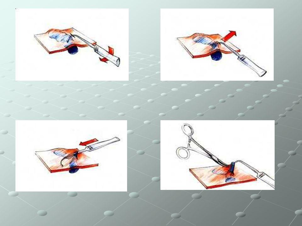 LASER VASCOLARI Sono oggi disponibili, sul mercato, dei laser selettivi appositamente creati per il trattamento degli inestetismi vascolari (capillari o telangectasie, angiomi piani o rilevati, laghi venosi ed altro ancora).