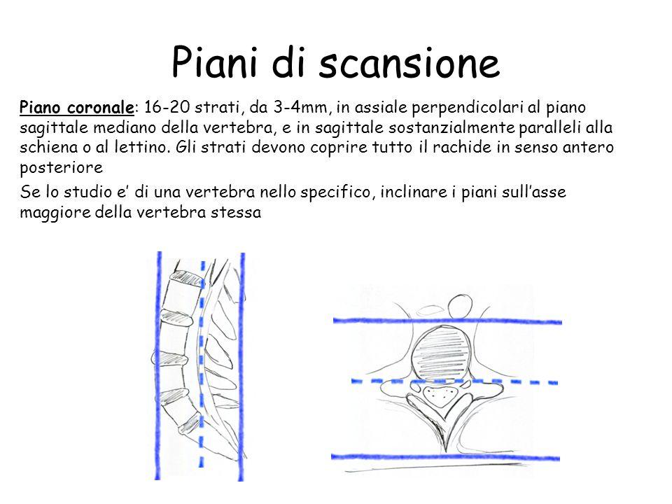 Piani di scansione Piano coronale: 16-20 strati, da 3-4mm, in assiale perpendicolari al piano sagittale mediano della vertebra, e in sagittale sostanz